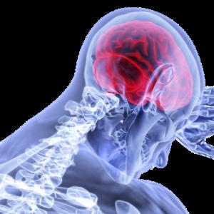 アルツハイマー病の原因を知り、その対処法を安保徹先生から学ぶ