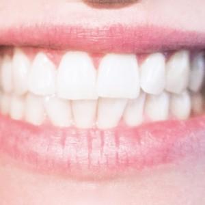 """歯のスピード治療に予約殺到! """"歯""""最先端技術【未来世紀ジパング】"""